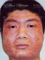 濕疹個案4 治療前