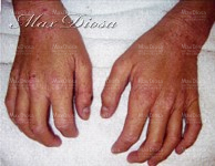 濕疹個案4 治療中