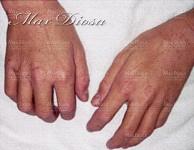濕疹個案4 治療後