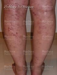 濕疹個案1 治療前